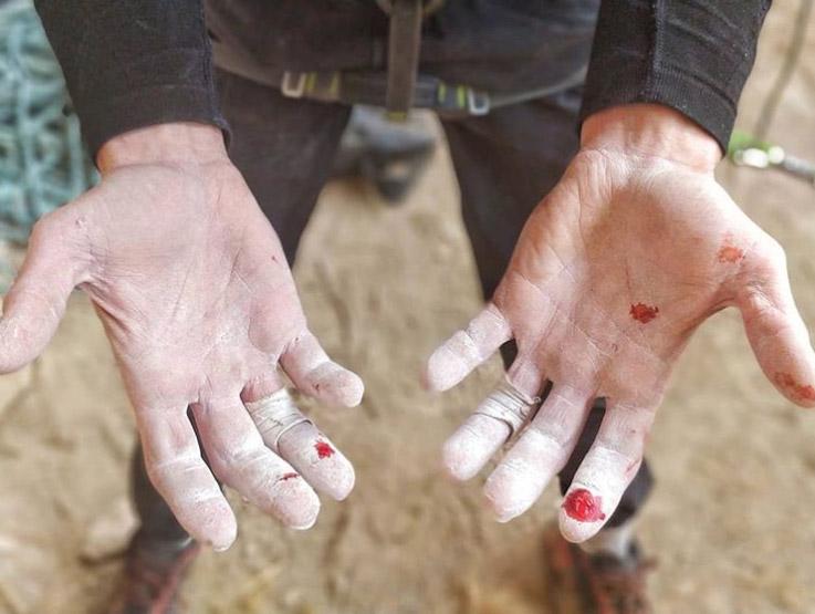 Los dedos de Stefano Ghisolfis sufren de los afilados bordes de La Capella.