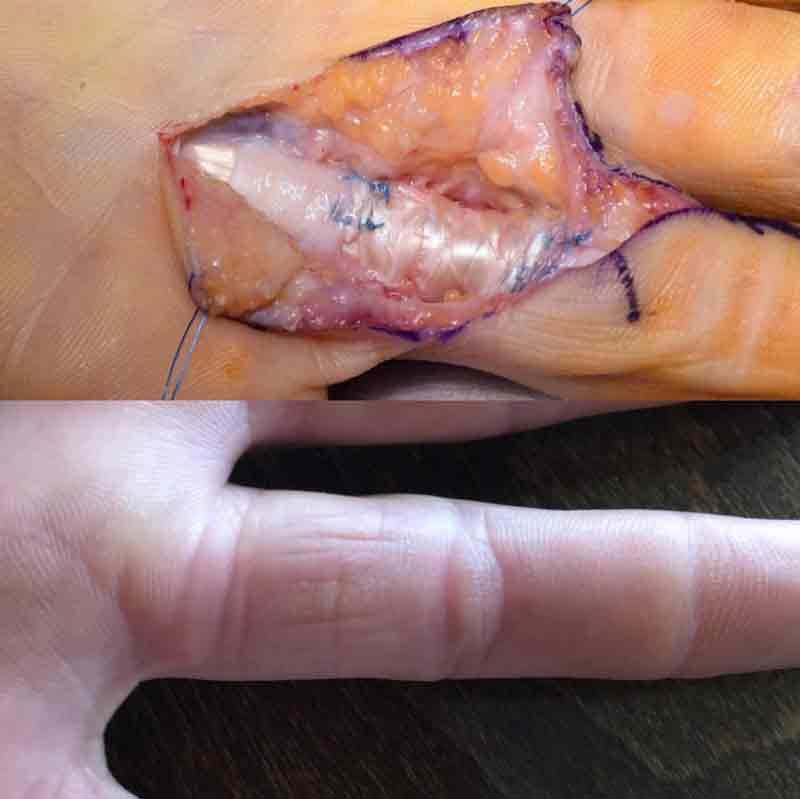 Una comparación: el dedo de Cédric hace siete meses y en febrero.