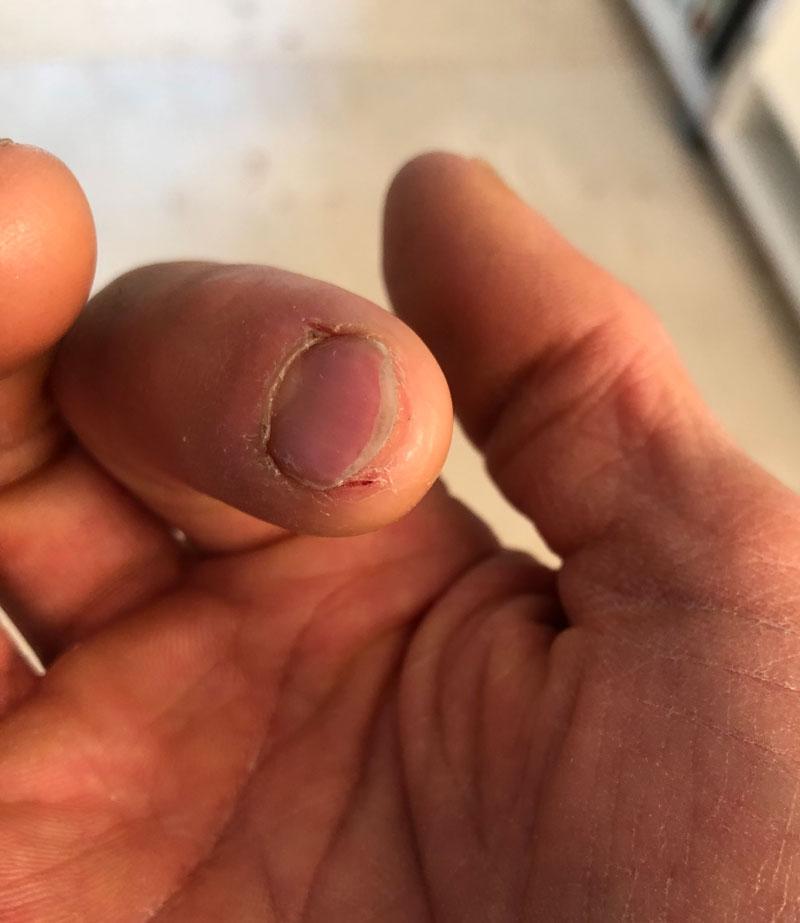 ひび割れ 親指 指先のひび割れとパックリ割れ改善したい 原因と治し方は?