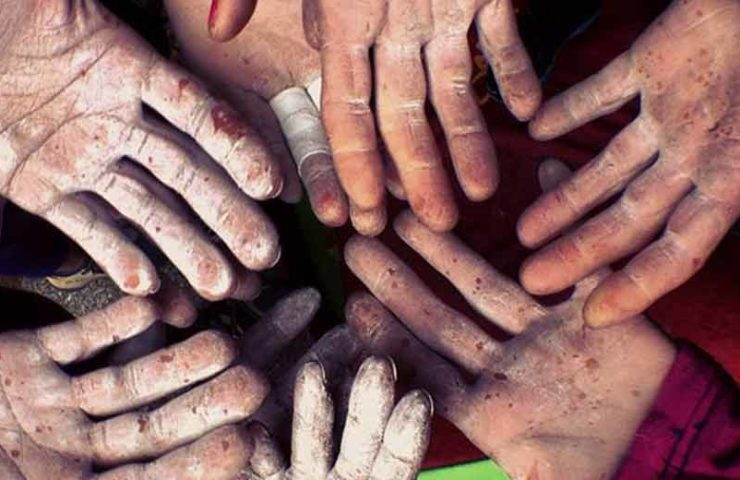 Cómo cuidar la piel de tus dedos y así poder escalar más tiempo.