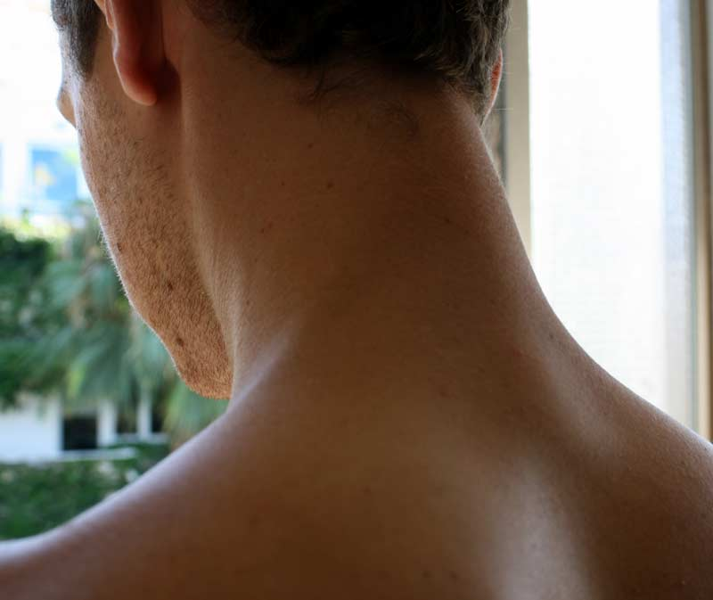 Make your own cream for the treatment of neck tension. (Picture אנדר-ויק - CC BY-SA 3.0)